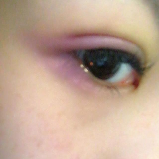 次にラメ入りの紫のシャドーで目尻側を二重幅くらいまで広くのせ、目尻も囲います