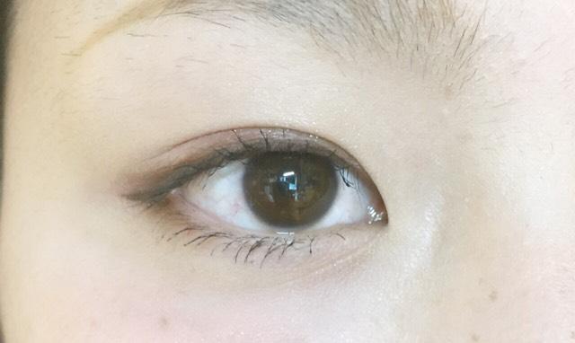 裸眼で出来る形成メイクのAfter画像