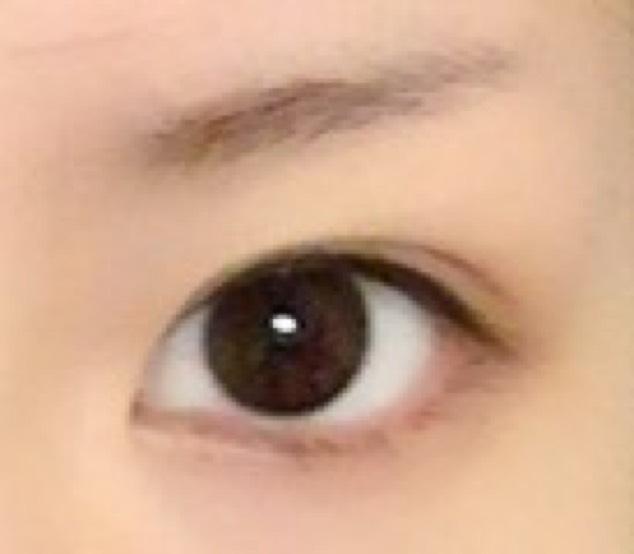 純日本人からハーフの目のBefore画像