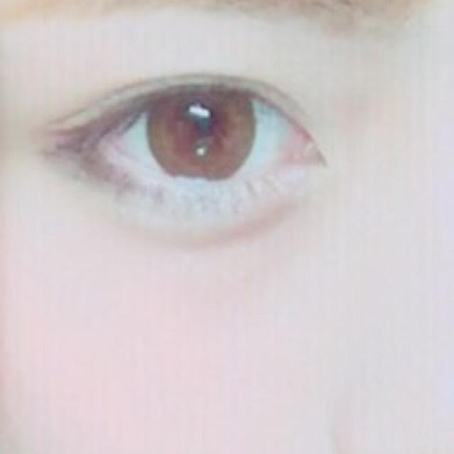 目が腫れた時の対処法!
