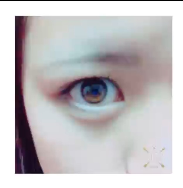 アイトークで瞼をくっつけずに二重をつくる方法のBefore画像