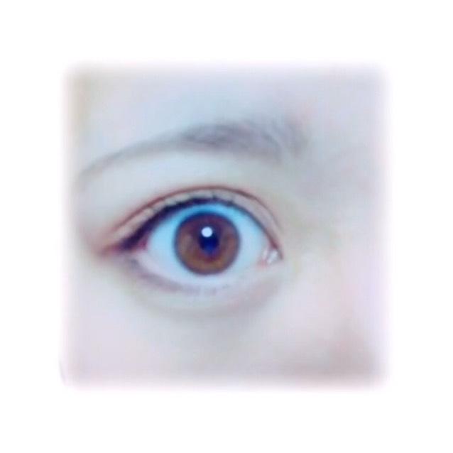 アイトークで瞼をくっつけずに二重をつくる方法のAfter画像