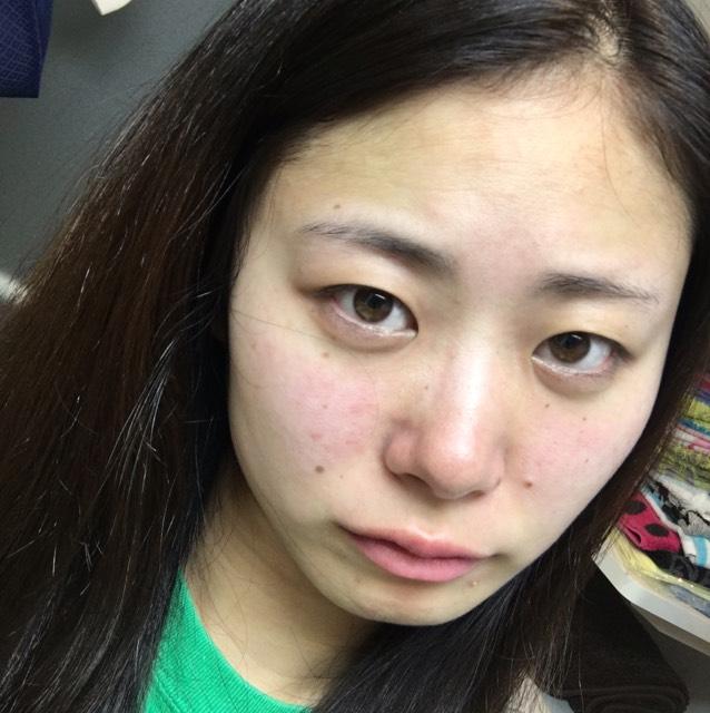【被写体】アンニュイのBefore画像