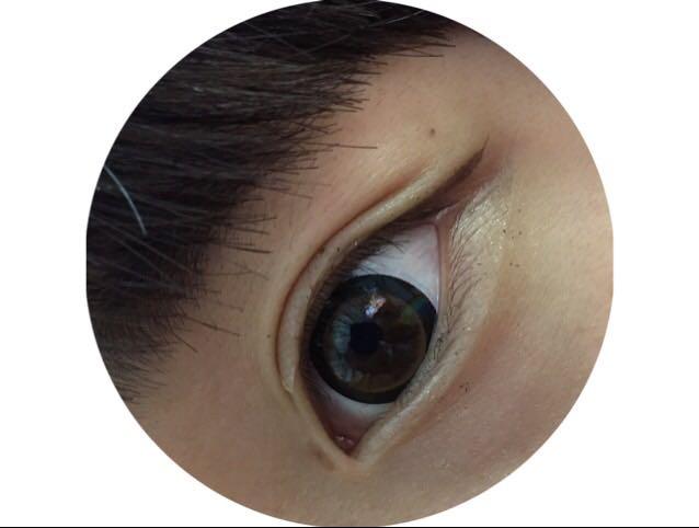 二重幅を広げます⁽⁽ଘ( ˊᵕˋ )ଓ⁾⁾ 二重のちょうどいい幅は目のキワから4~6mm上の二重線がつきやすい幅ですଘ(੭ˊ꒳ˋ)੭✧
