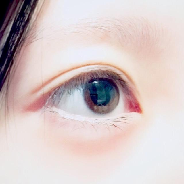 自然的雙眼皮