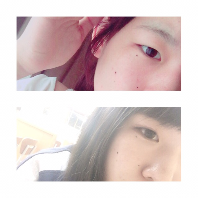 before▷▶︎▷after 一重からメイク