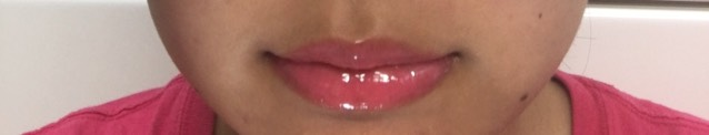 うるうる唇の作り方♡.。のAfter画像