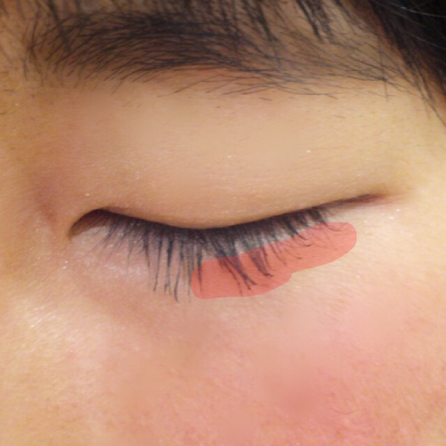 マスカラはティッシュオフしてから上だけつけます。 濡れ綿棒でまつ毛を撫でるように余分なマスカラをとったら、赤くなっている所だけ部分ビューラーであげます。 まぶたの重みで落ちてきてしまうので、黒目より外側の中間から毛先のみです。