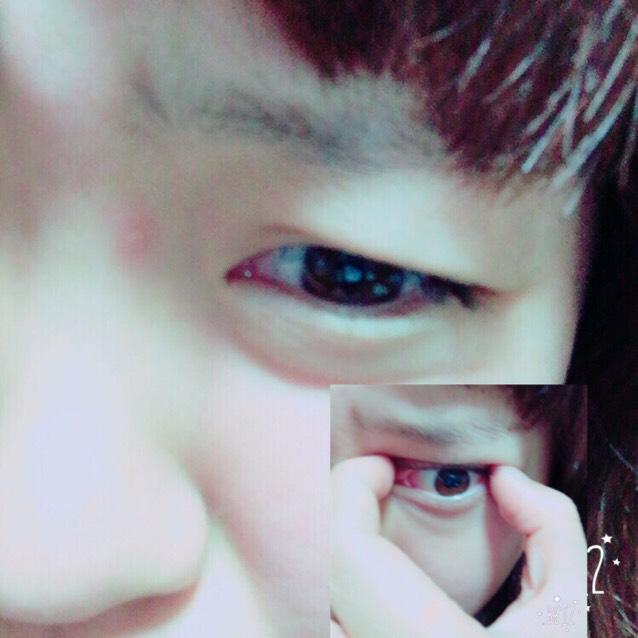 二つの写真みたいに、上瞼と下瞼に力入れて半目する感じ!右したは、二重のラインの端と端の瞼をひっぱる!