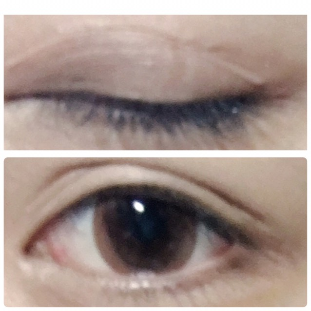 二重幅は目頭の方が幅が大きくなるようにする。