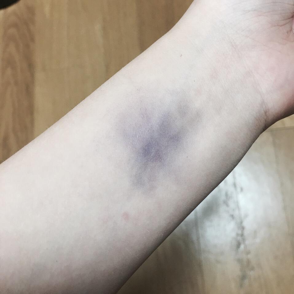 濃い紫のシャドウを アザを作りたい所に塗る   普通のアザにしたいならアザを作る工程は これだけです (*´ω`*) ハロウィンに使うようなアザにしたかったら次の工程もしてください