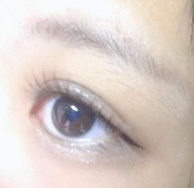重い瞼から二重にする方法のAfter画像