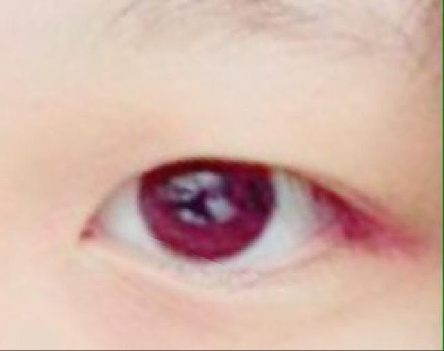 重い瞼から二重にする方法のBefore画像