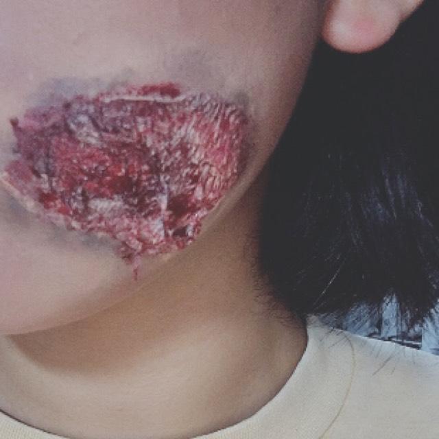 こんな傷もつくる。