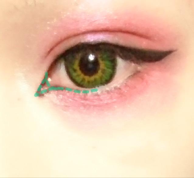 切開ラインは長すぎず短すぎずくの字に切開ラインを作ったら瞳の真ん中らへんまで粘膜ギリギリのラインを引いていきます。