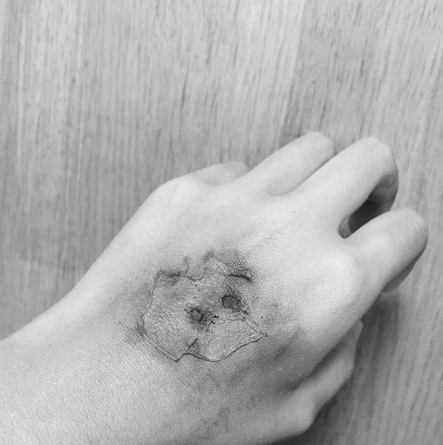 ハロウィン傷メイクのAfter画像