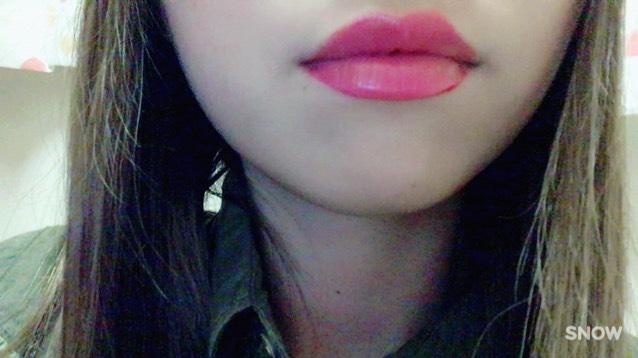 【唇をより分厚く】のAfter画像