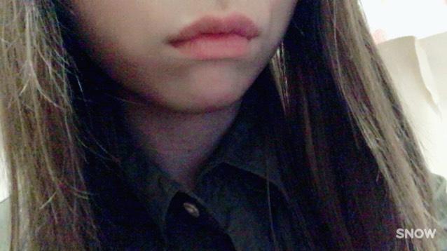 【唇をより分厚く】のBefore画像