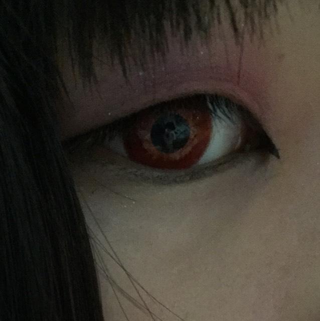切開ラインを引きます。目頭の皮膚を引っ張りながら細めに調節するといいと思います!(´。•ω•。`)
