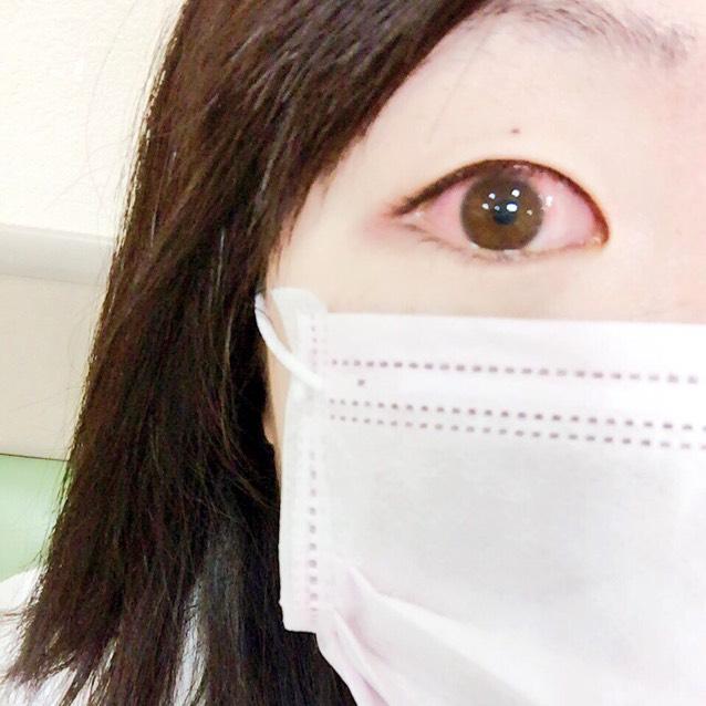 その結果、傷付いた目にカラコンをしたことによって感染を起こし、結膜炎になったとのことでした。 お医者さん曰く、ドンキなどでのカラコンを買う事は笑い事ではなく本当に危ない事だと言われました。