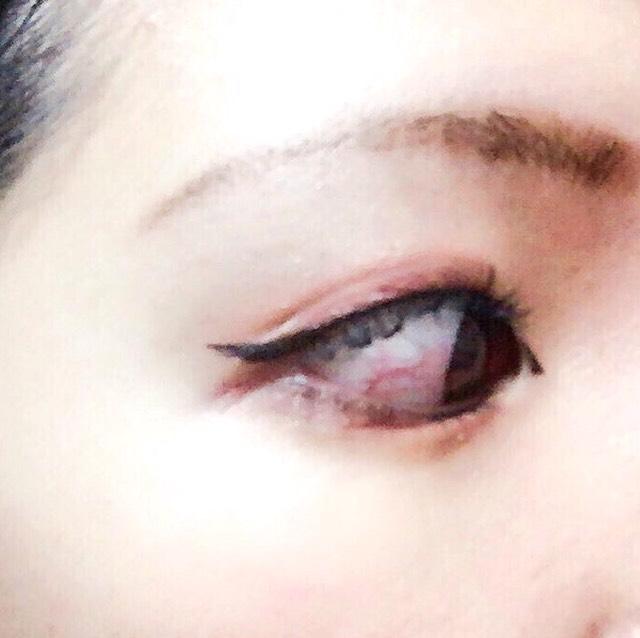 そんな事は気にせずカラコンを入れ、メイクを続ける事、数日。 急に指が刺さった目が充血し始めました。
