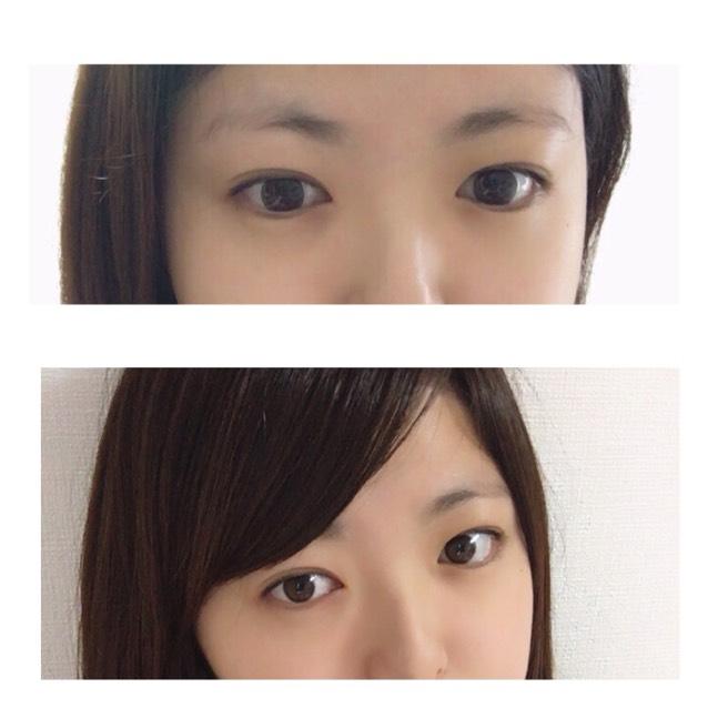 まずはカラコンいれます〜(^。^)  わたしは乱視なので眼科で処方されるもの使ってます(^。^)