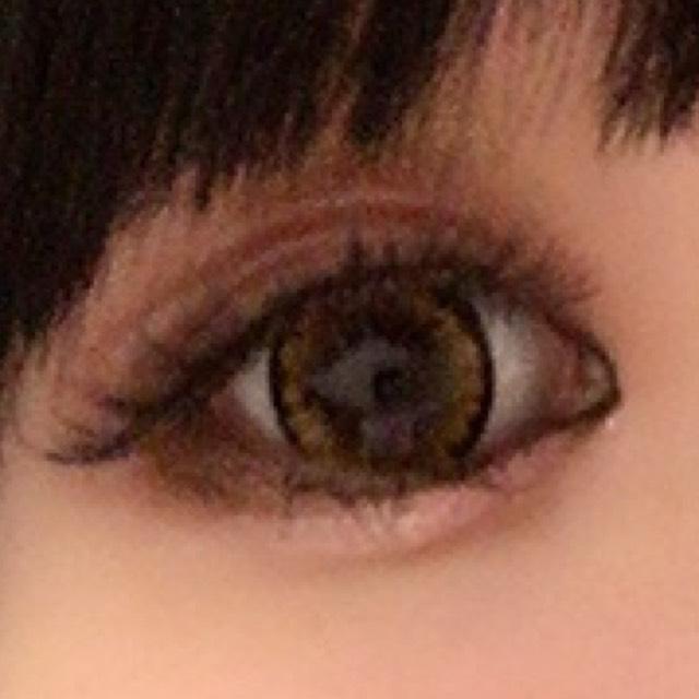 丸目にするには切開ライン大事な為、切開ライン引いたら下瞼の目頭を1/3まで引く