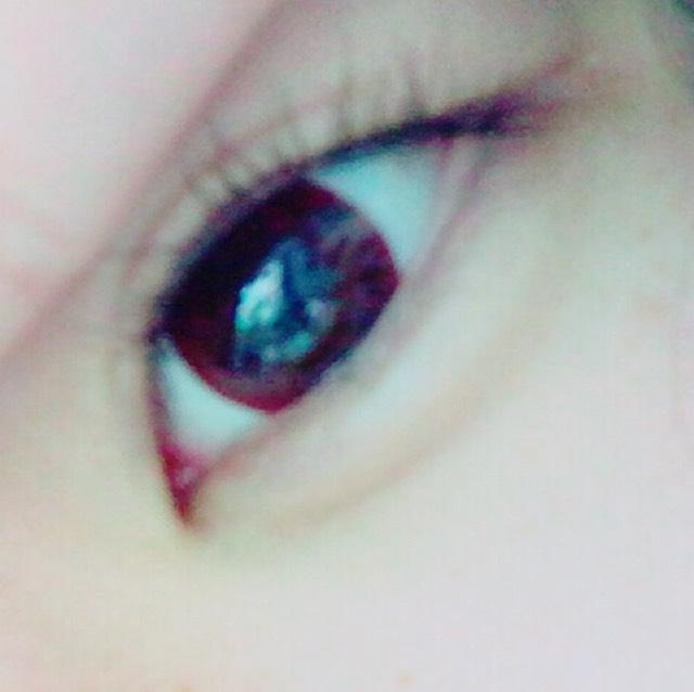 たくさんの目のBefore画像