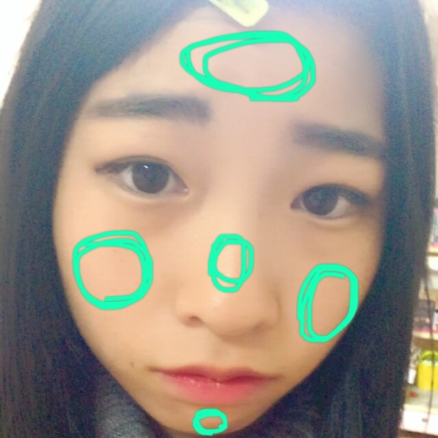 そして、洗顔。 写真の場所に泡をのせるんですけど、順番に注意!!!!! 皮脂の多いところから、おでこ→鼻→あご。そして頬など