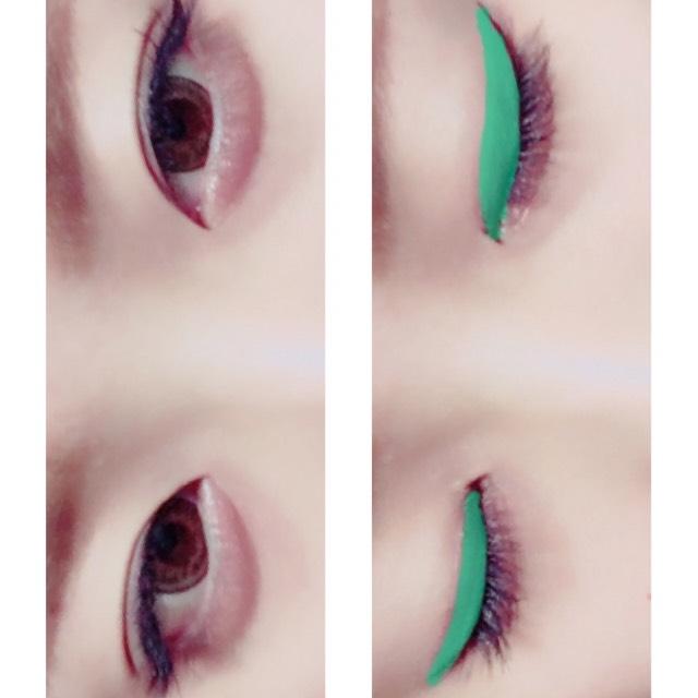 目を開くとこんな感じ 緑のラインのとこが二重幅です