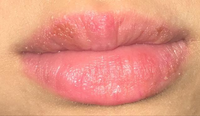 唇が荒れた話&リップケア!!!!のBefore画像