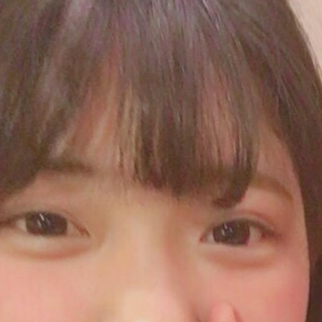 あごチーク♡のBefore画像