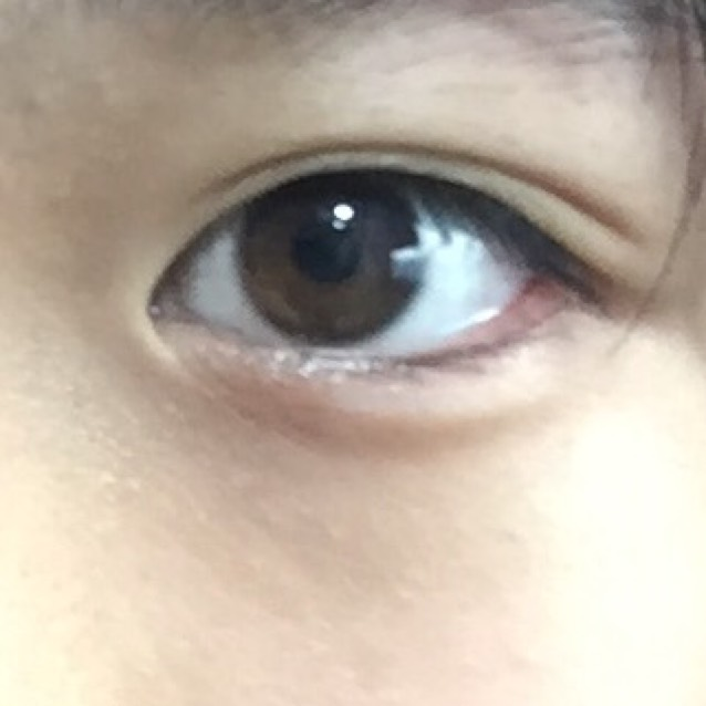 うさぎ目メイクのBefore画像