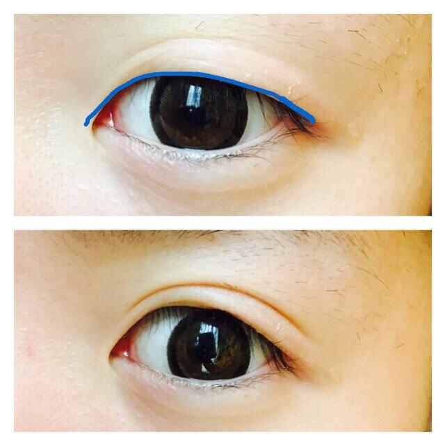 瞼の皮が余っているので、アイプチのりを睫毛の際に塗って少し折り込みます。 これで並行二重のラインができます(♡)  奥二重を作るイメージでやるのですが ここで完全に奥二重を作ると並行二重ではなく ただの奥二重が完成するので注意⚠