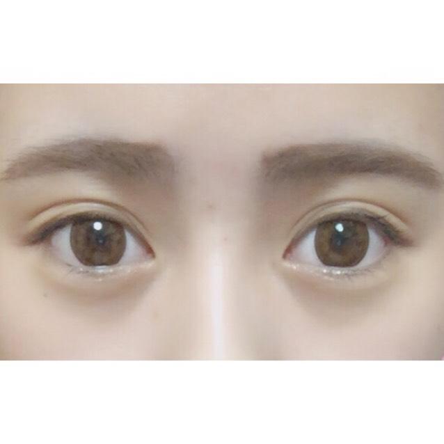 私は元々二重なのですが、 目を大きく見せるため二重幅を広げています(*^-^*) 最近は二重幅が安定してきて 何もしない状態でも理想の二重になっています♡