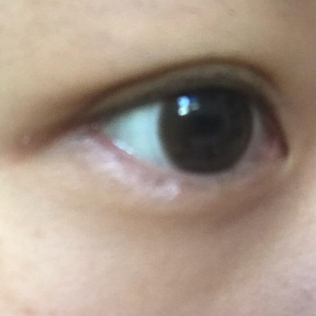 ④その絆創膏を目頭の部分で抑えながら目尻に向かって、引っ張って貼り付けたら二重の完成です☆