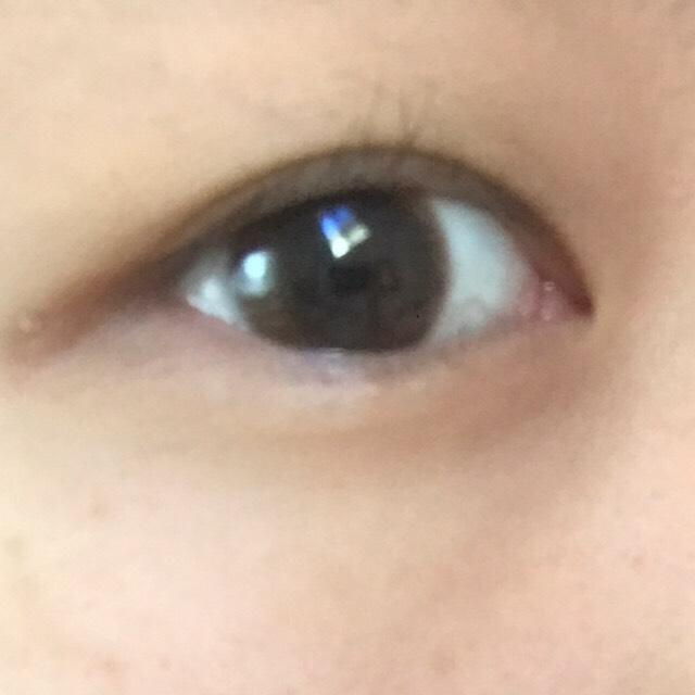 ①この目から目頭までしっかり線のある並行二重にしたいと思います!
