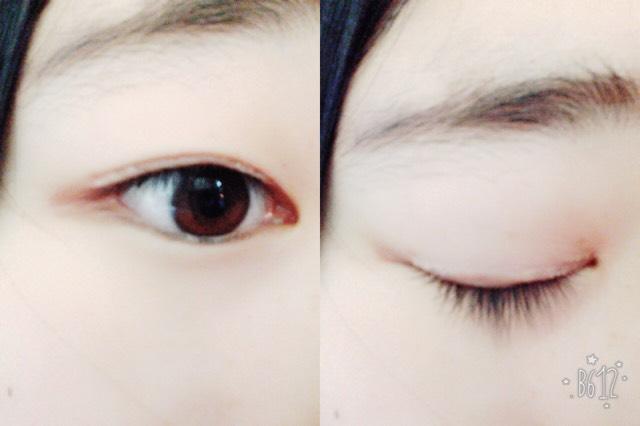 瞼が重い私の二重事情