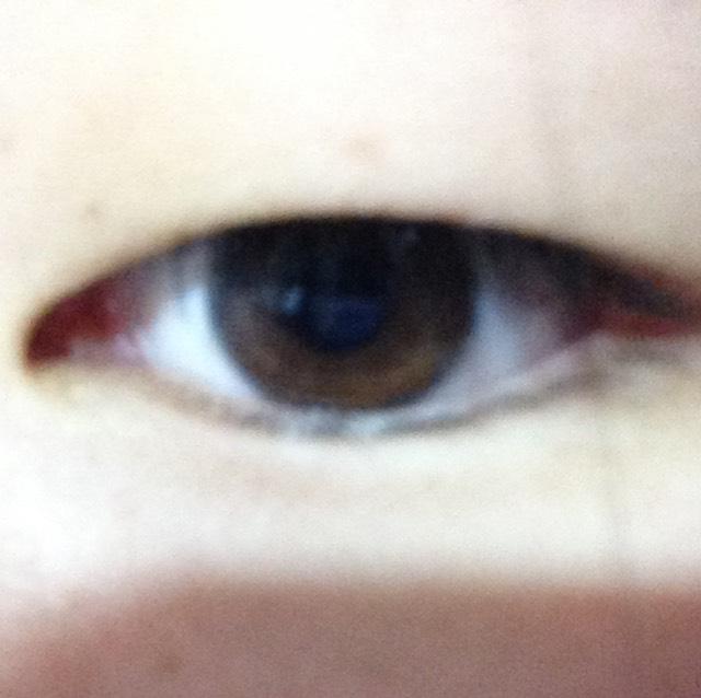 瞼が重い私の二重事情のBefore画像