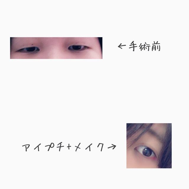 手術する前の瞼↓ ・一重 ・うっすらと線がある程度