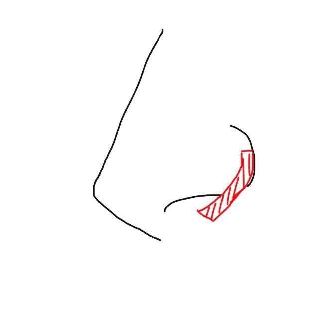 鼻プチを入れて微調整し、カットした絆創膏(赤部分)をちょっと引っ張り気味に貼って小鼻を小さく見せます