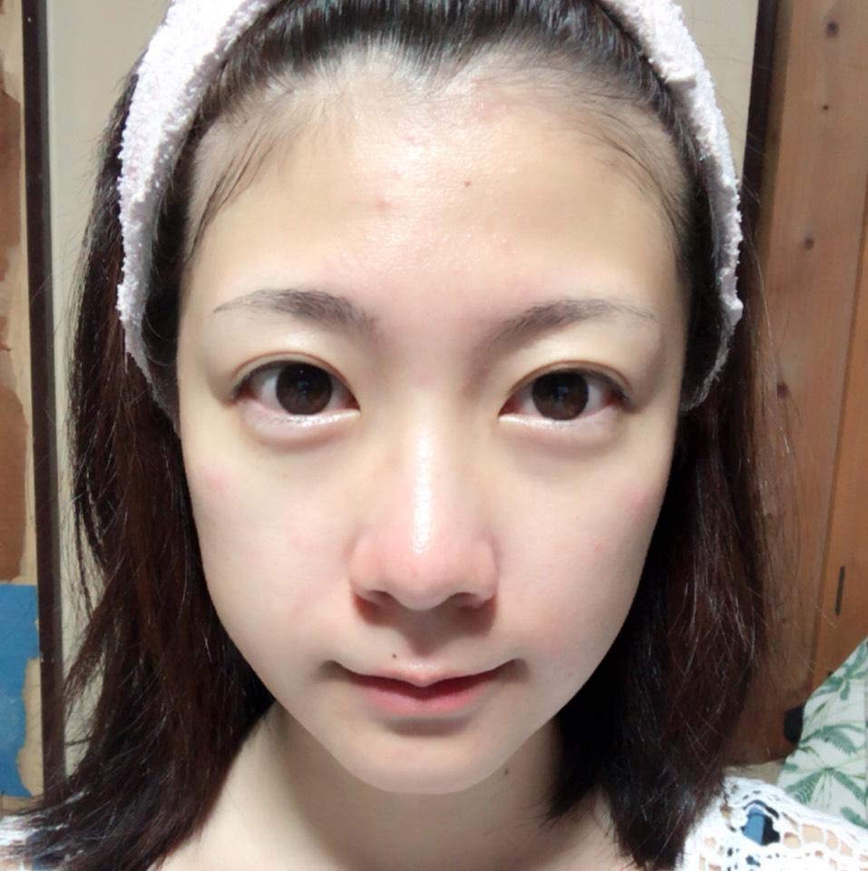 化粧水→美容液→乳液の順にしっかり保湿します。