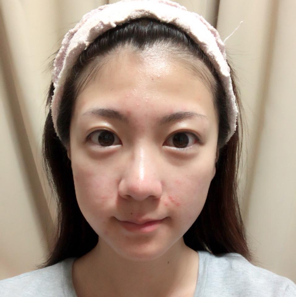 美容オイルと化粧水でしっかり保湿します。