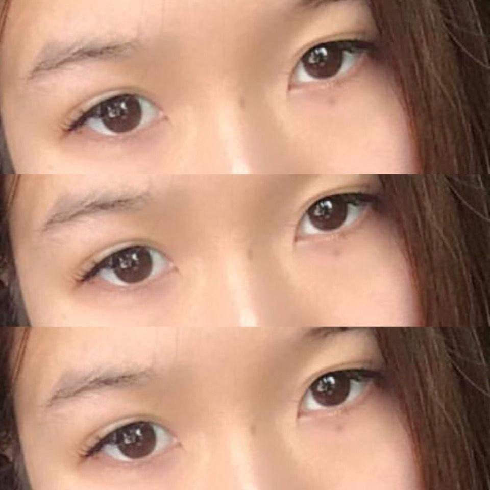 カラコンレビュー♡ミッシュブルーミンのBefore画像