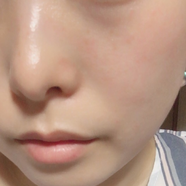 化粧水、乳液のみの 肌です 黒いのでウユクリームを今回は使用しました♡