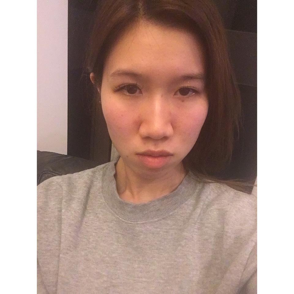 カラコンレビュー♡POPLENS(韓国のカラコン)のBefore画像
