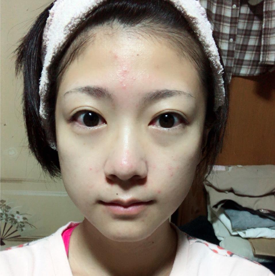 化粧水などでしっかりと保湿します。