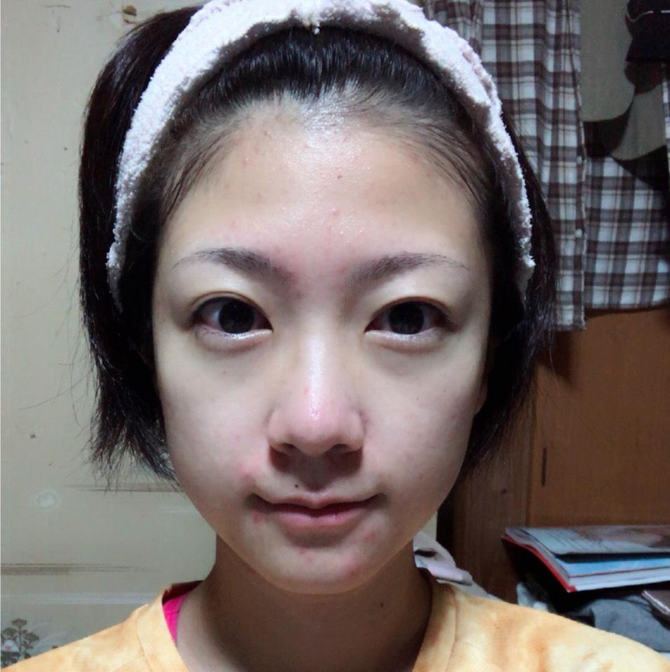 化粧水・保湿ジェルでたっぷりと保湿します。