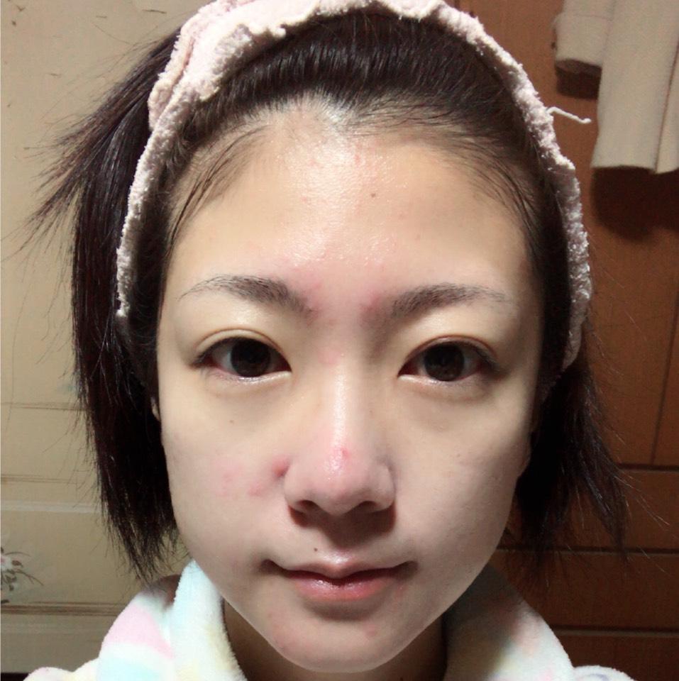 化粧水・保湿ジェルでしっかりと保湿します。