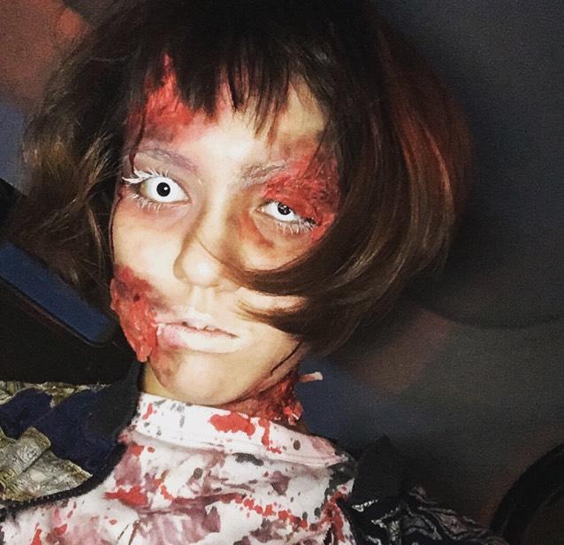 今回傷を頭、目の上、口周り、首に傷を作りました